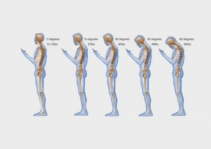 Constant use of smartphones and tablets and 'mobile' technology also has an impact on posture and pain. Put it down!