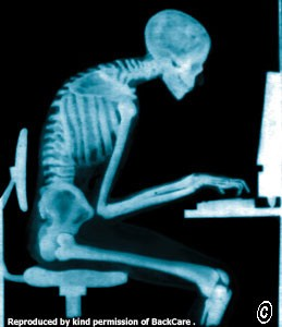 Poor posture when sitting at a desk for long periods can result in neck pain
