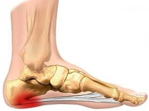 The plantar is shown in red here