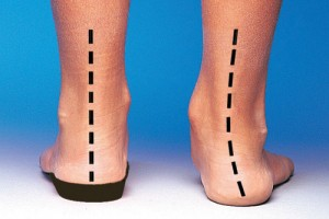 Pronation is when the foot rolls inwards, which causes the plantar fascia to stretch