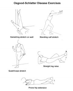 Suggested Stretches to Ease Symptoms of OSG